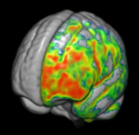 Los pacientes con esquizofrenia presentan cerebros más asimétricos ...