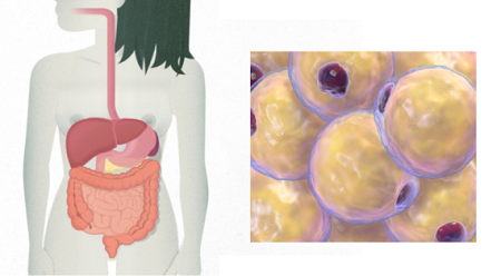 Stem cells treatment for fistulas in Crohn's disease is